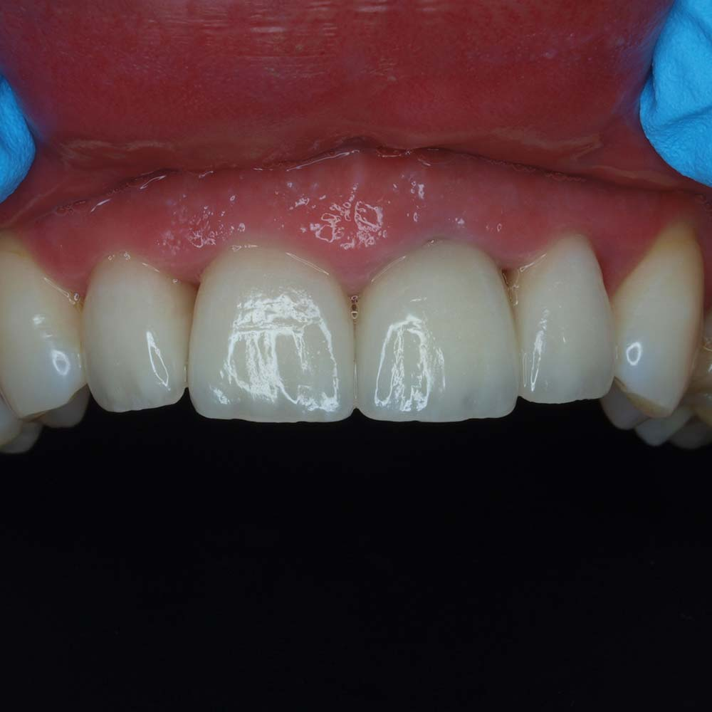 After Dental treatment - New crowns placed