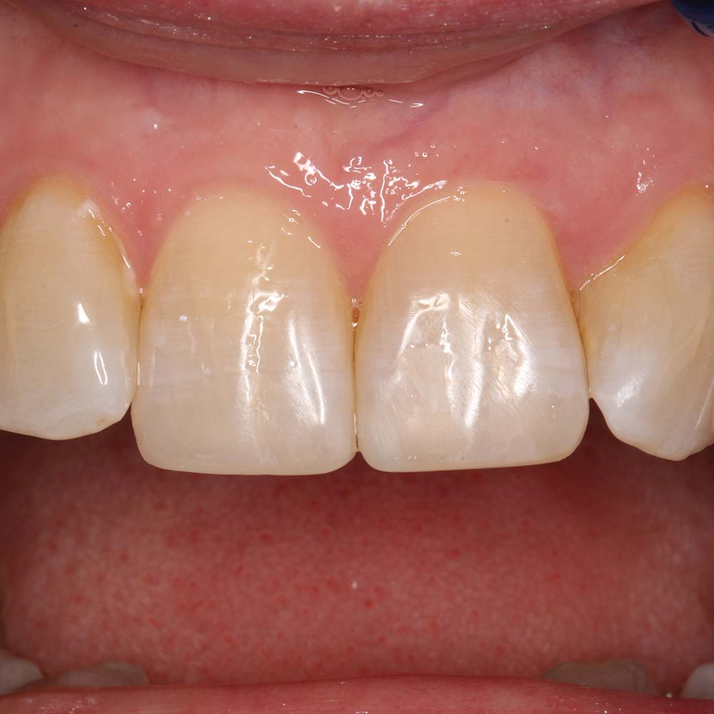 After Dental treatment - Composite addition