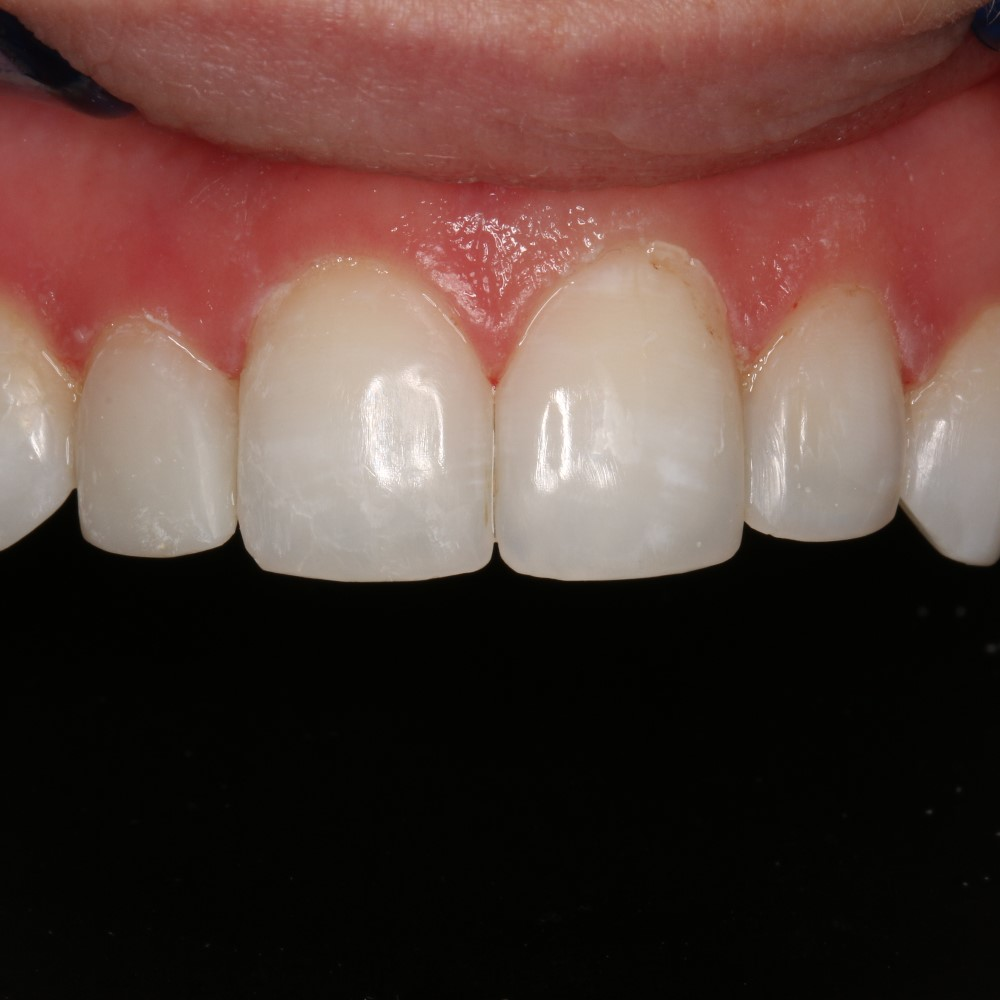 After Dental treatment - Restored with composite