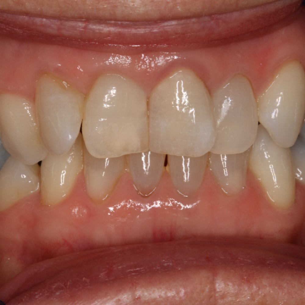 After Dental treatment - Crown replacement