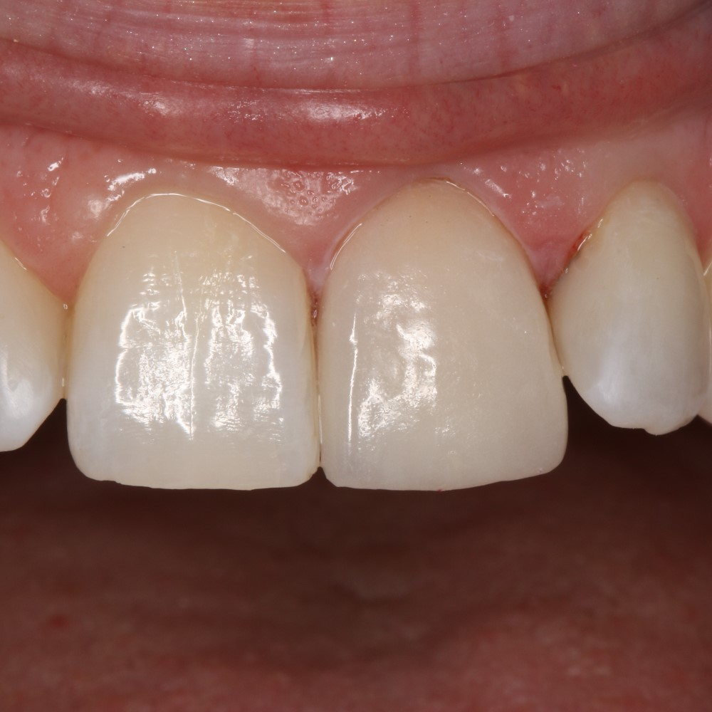 After Dental treatment - Placement of new veneer and fillings on side teeth