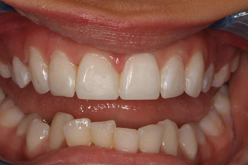 After Dental treatment - Closure of spaces with composite no drilling