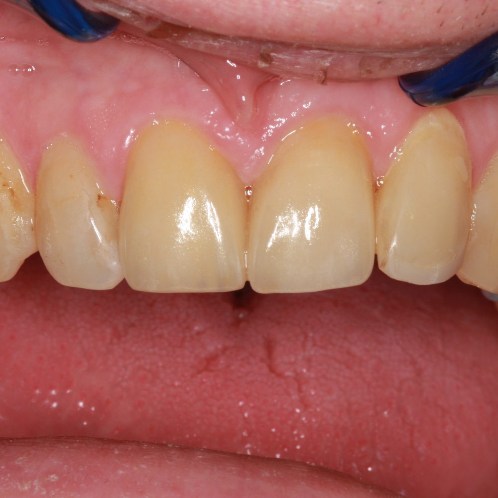 After Dental treatment - Placement of 2 new crowns