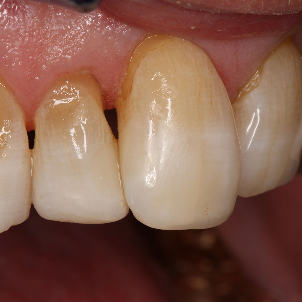 After Dental treatment - New composites